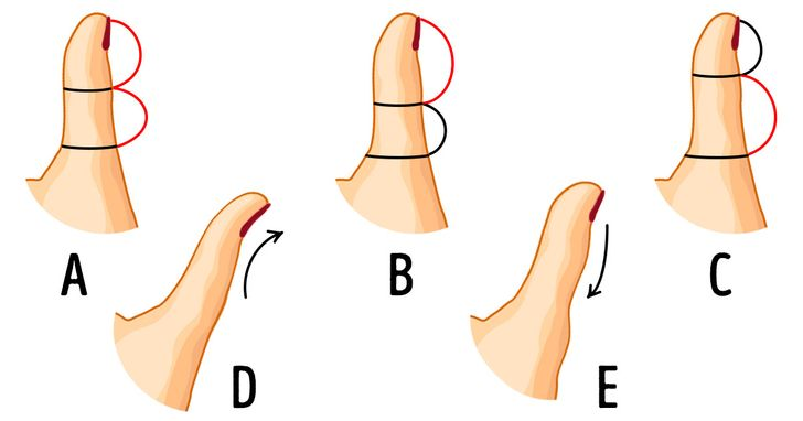 The Shape ofYour Thumb Can Reveal Something About Your Personality, and It's Curious toLearn About